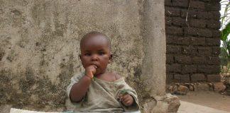 Un enfant victime de malnutrition au Burundi
